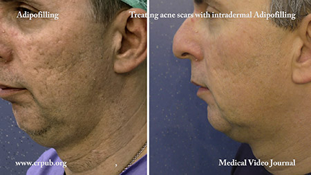 Acne scars treating with intradermal Adipofilling
