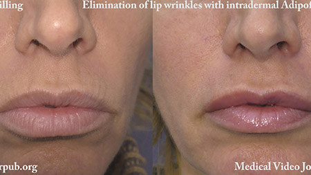 Adipofilling  Elimination of lip wrinkles