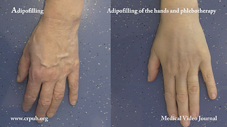 Adipofilling of the hands and Phlebotherapy