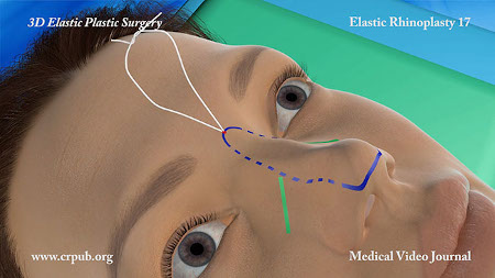 Elastic Lifting of the Nose with thread news