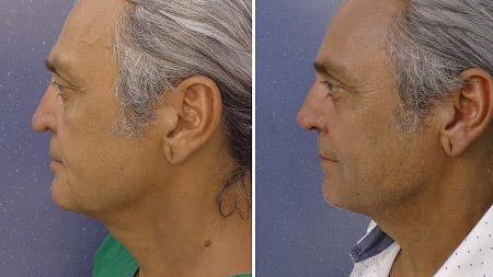 Elastic rhinoplasty with the elastic thread