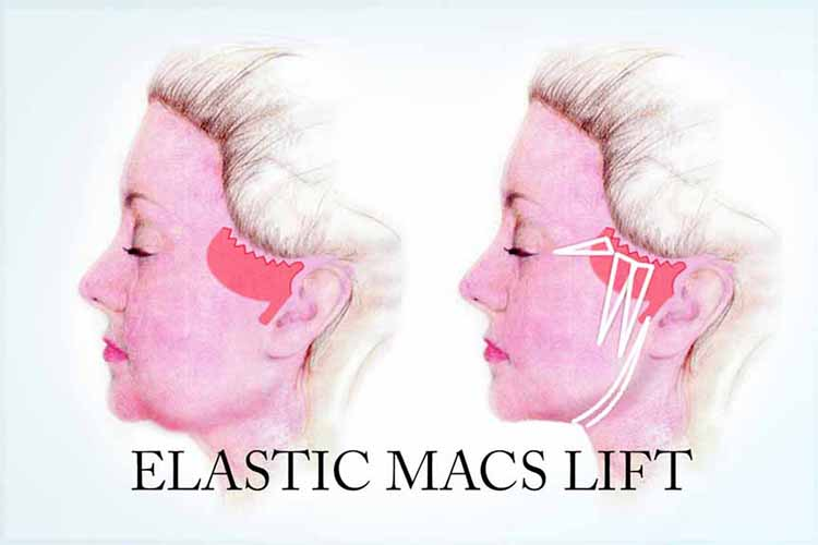 Elastic Macs Neck lift minimal scar and dissection