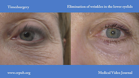 Elimination of wrinkles in the lower eyelids
