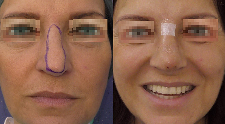 Tip of the nose correction with elastic thread before and after ok