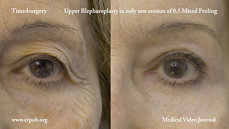 Upper Blepharoplasty in one 0.5 mixed peeling